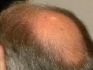 LoddersSoutars Baldy